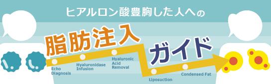 ヒアルロン酸注入で豊胸した人への脂肪注入ガイド