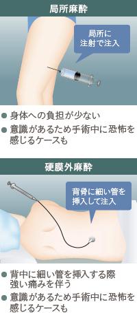 コンデンスリッチ豊胸:局所麻酔と硬膜外麻酔の特徴