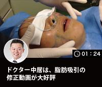 ドクター中居は、脂肪吸引の修正動画が大好評