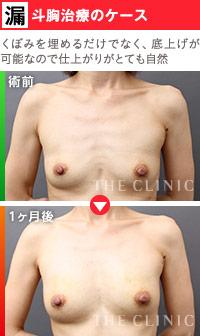 脂肪の質と注入技術の向上で実現した「漏斗胸」の治療