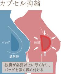 現場では、豊胸インプラントに関する多くのトラブルが