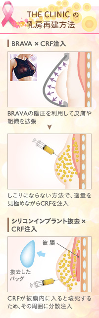 THE CLINIC の脂肪を活用した乳房再建手術