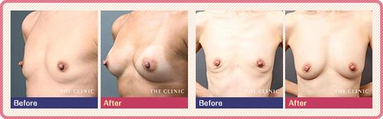 コンデンスリッチ豊胸:産後の豊胸手術の症例